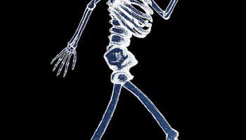 Утилизация рентген оборудования: аппаратов, пленок, трубок, одежды