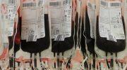 Особенности утилизации капиллярной и венозной крови